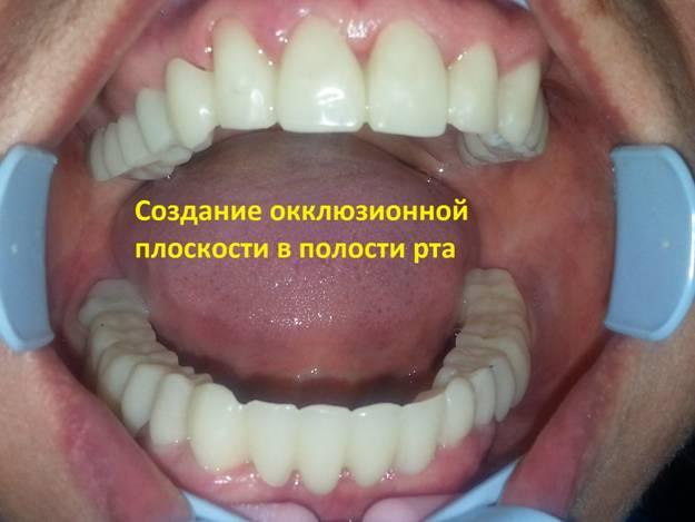 Поднятие высоты зубов
